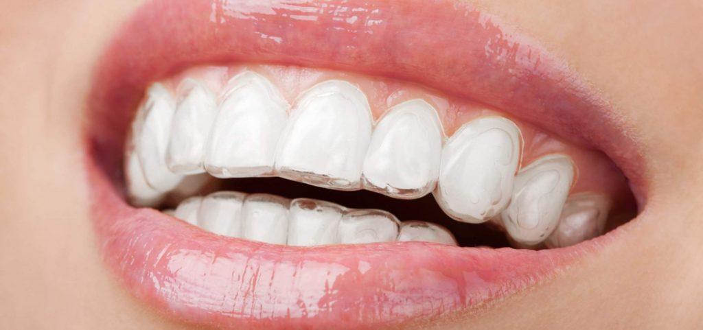 Стоматолог ортодонт - кто это такой-3